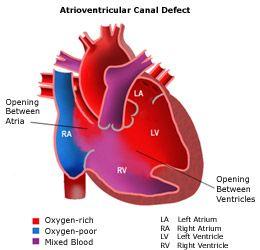 Atrioventricular Canal